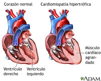 Miocardiopatía Hipertrófica: Primer causa de muerte súbita en atletas